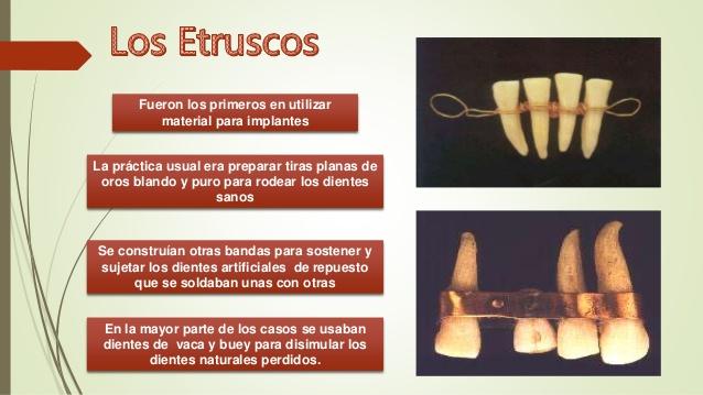 historia-de-los-biomateriales-dentales-12-638